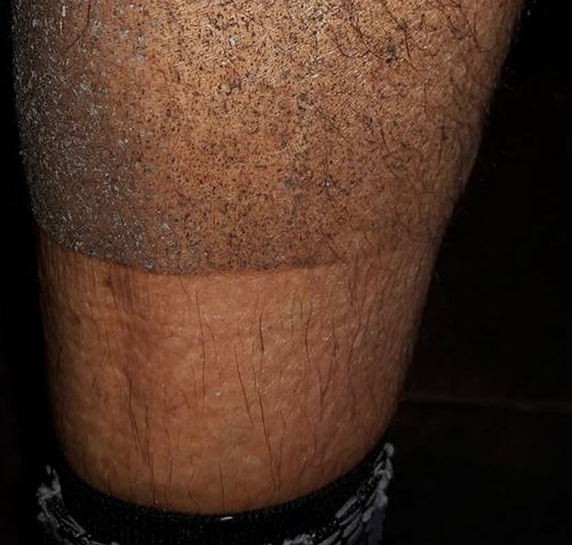 muddy cyclists leg
